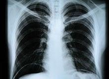 Кто открыл рентгеновские лучи?