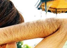 Почему у людей на теле растут волосы?