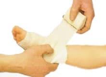 Что такое растяжение связок, растяжение сухожилия и кровоподтеки?