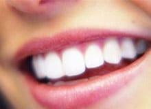 Что такое человеческие зубы?