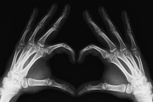 Как и где используется рентген в медицине. Какие виды рентгена бывают - рентген зубов, маммография описание, томография.