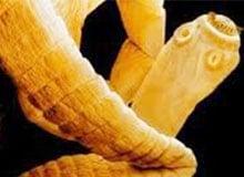Что представляют собой ленточные черви?