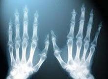 Икс-лучи это рентген. Когда обнаружили икс-лучи и как изобрели рентген.