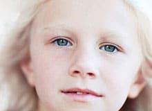 Что такое альбинос?