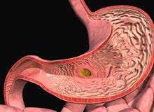 Отчего возникают язвы желудка?