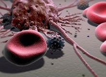Что такое лейкемия?