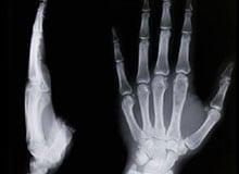 Как работают рентгеновские лучи?