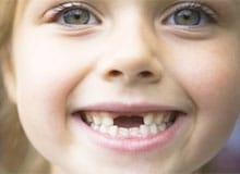 Почему у нас выпадают молочные зубы?